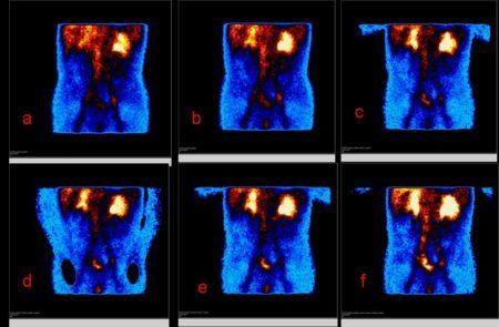 Рак позвоночника - симптомы и проявление, способы лечения