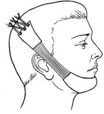 Перелом верхней челюсти - первая помощь и лечение
