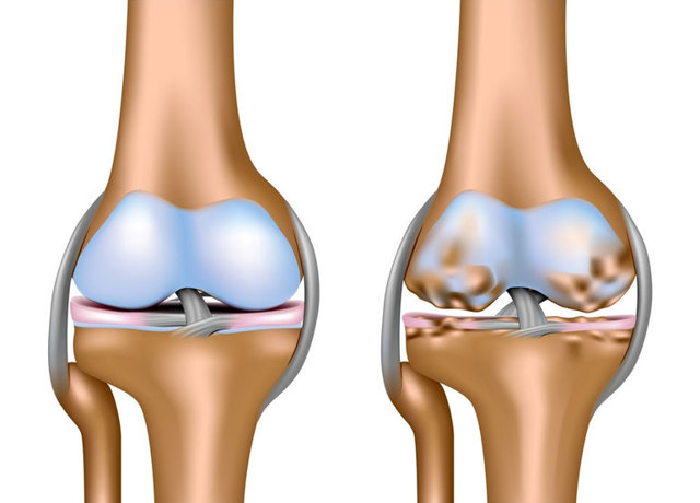 Массаж при артрозе коленного сустава - можно ли делать