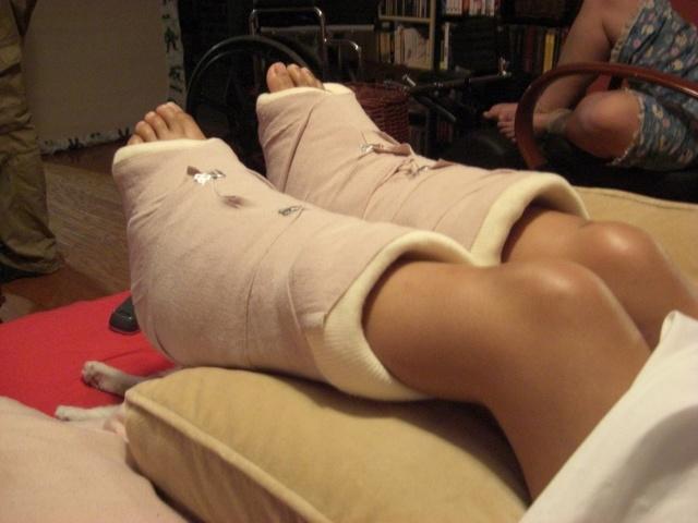Реабилитация после перелома пятки в домашних условиях