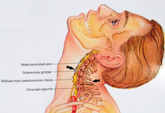 Дорсопатия шейного отдела позвоночника - что это такое