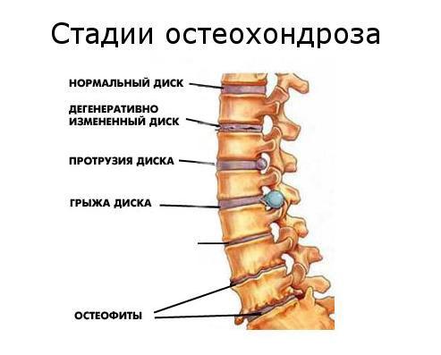 Боли в животе при остеохондрозе - причины и лечение