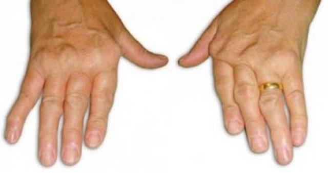 Синдром Фелти - что это такое, симптомы и лечение