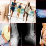 Посттравматический артроз - что это такое, симптомы и лечение