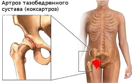 Коксартроз тазобедренного сустава 3 степени - лечение без операции