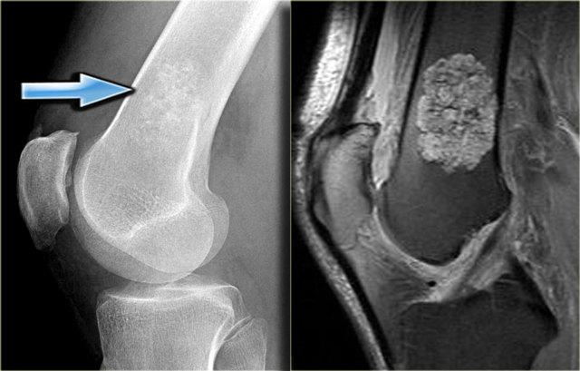 Остеохондрома бедренной кости - что это такое, симптомы и лечение