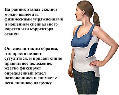 Упражнения при сколиозе позвоночника - правила выполнения