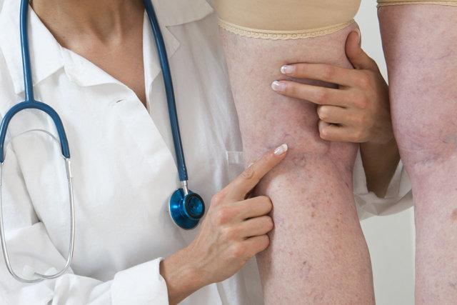 Болят ноги от колена до ступни - причины и лечение