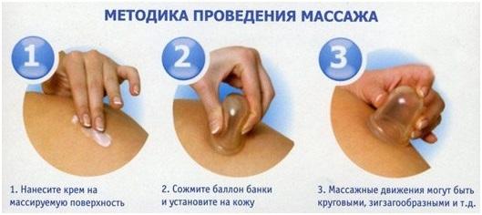 Массаж банками при остеохондрозе шейного отдела