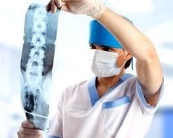 Ушиб позвоночника - симптомы, лечение и профилактика