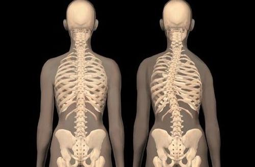 Кифосколиоз грудного отдела позвоночника 1,2, 3 и 4 степени - что это