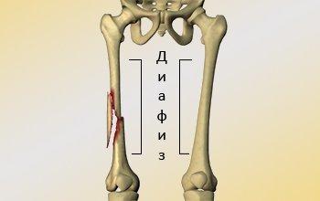Перелом диафиза бедренной кости - что это такое и как лечить
