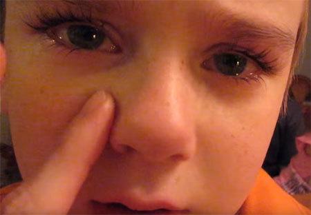 Признаки перелома носа у ребенка и симптомы