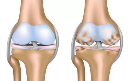 Чем снять боль в коленях при артрозе в домашних условиях