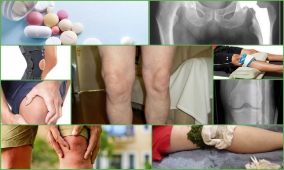 Артроз 1 степени - что это такое, признаки и лечение