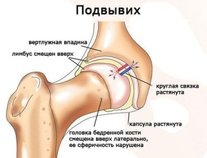 Вывих тазобедренного сустава - симптомы и методы лечения