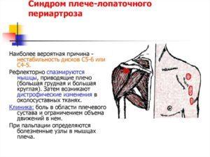Лопаточно-реберный синдром - симптомы и лечение