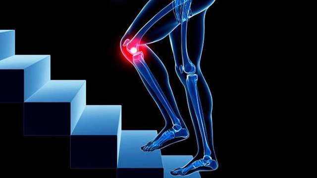 Гонартроз 1 степени коленного сустава - лечение и симптомы