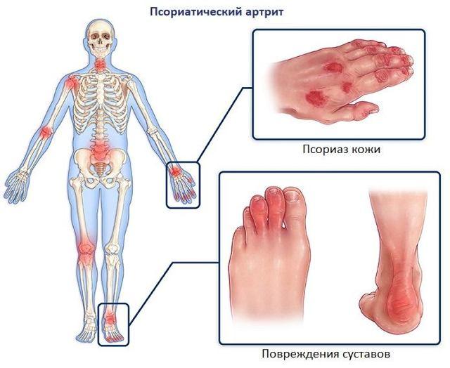 Диета при псориатическом артрите суставов - меню на неделю