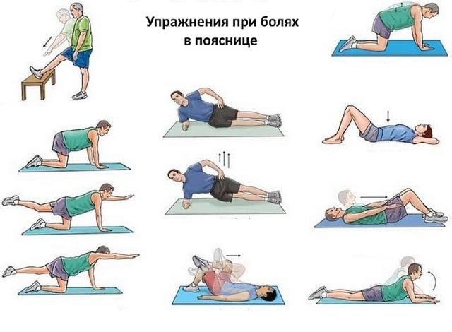 Упражнения при радикулите поясничного отдела позвоночника