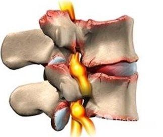 Степени остеохондроза поясничного и шейного отделов позвоночника