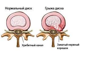 Лечение грыжи позвоночника без операции - лучшие методы