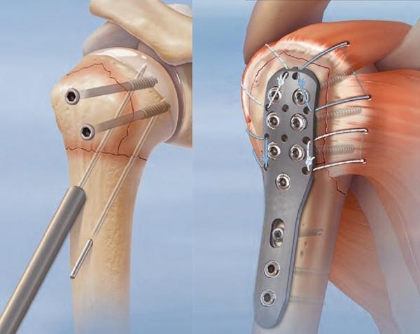 Перелом плечевой кости со смещением и без - лечение
