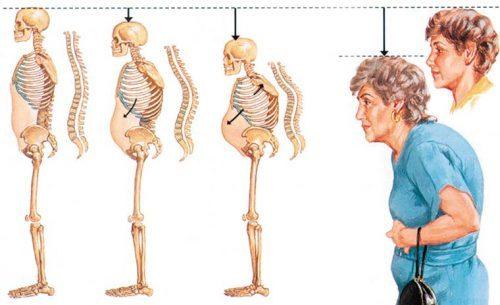 Лечение остеопороза у пожилых женщин - эффективные методики