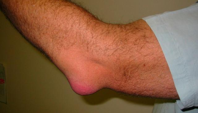 Бурсит - что это такое и какими методами его лечить?