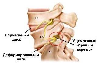 Головные боли при остеохондрозе шейного отдела - что делать