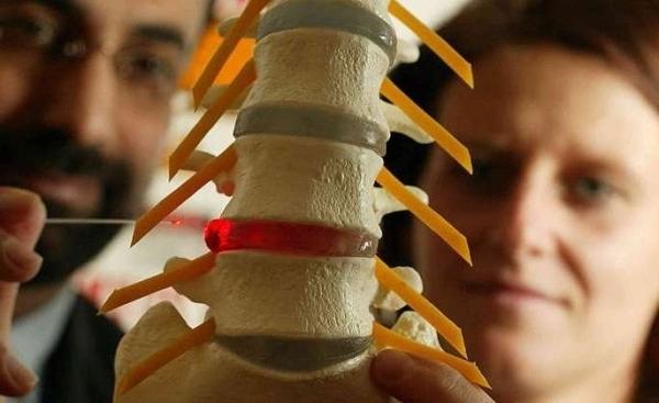 Грыжа шейного отдела позвоночника - симптомы и лечение