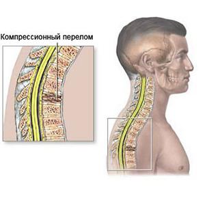 Лечебный комплекс при компрессионном переломе позвоночника