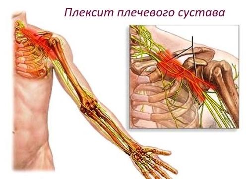 Плексит плечевого сустава - симптомы и лечение
