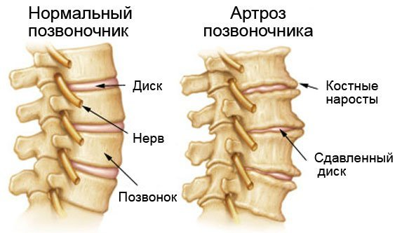 Артроз дугоотросчатых суставов поясничного отдела позвоночника