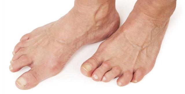 Артроз стопы - симптомы и лечение, диагностика и профилактика