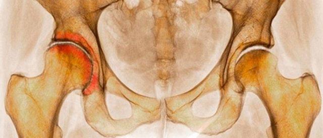 Заболевание опорно-двигательного аппарата двусторонний коксартроз
