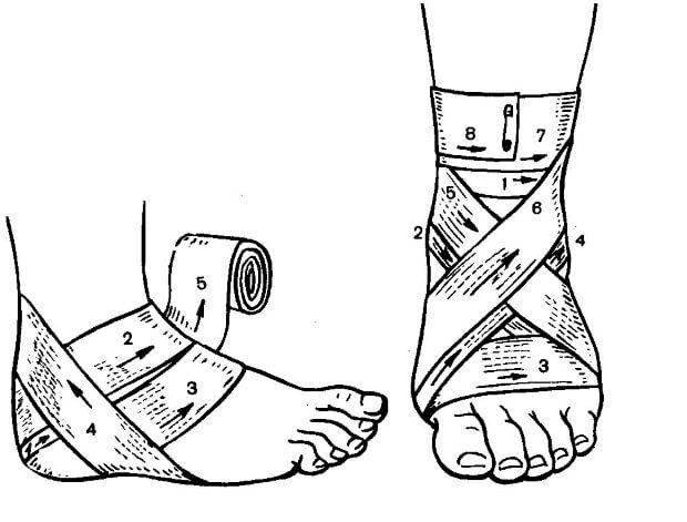 Ушиб голеностопного сустава - что делать и как лечить