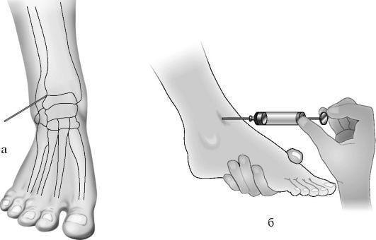 Тендовагинит голеностопного сустава - симптомы и лечение