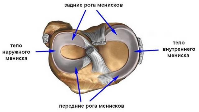 Разрыв заднего рога медиального мениска коленного сустава - лечение