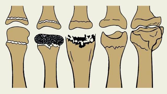 Остеохондропатия - что это такое и как правильно лечится