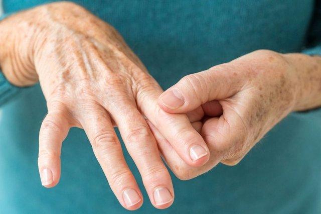 Лечение артрита народными средствами в домашних условиях