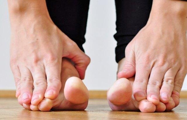Косточка на ноге - как лечить народными средствами
