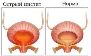 Артропатия - что это такое и какие существуют методы лечения