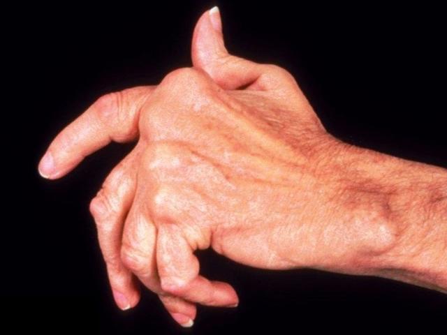 Ревматоидный полиартрит - симптомы и лечение