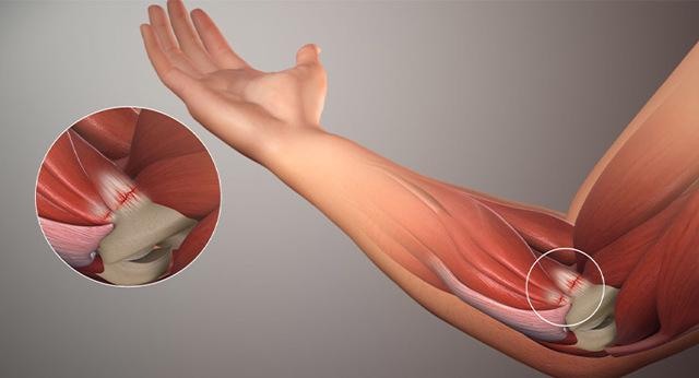 Артроз локтевого сустава - симптомы и лечение