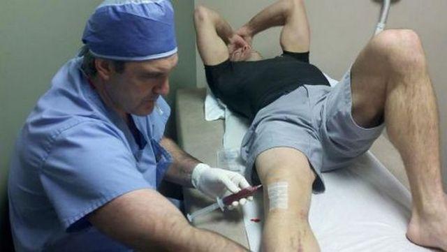 Гемартроз коленного сустава - что это такое, лечение и симптомы