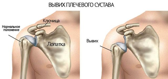 Вывих плеча - симптомы, лечение и реабилитация