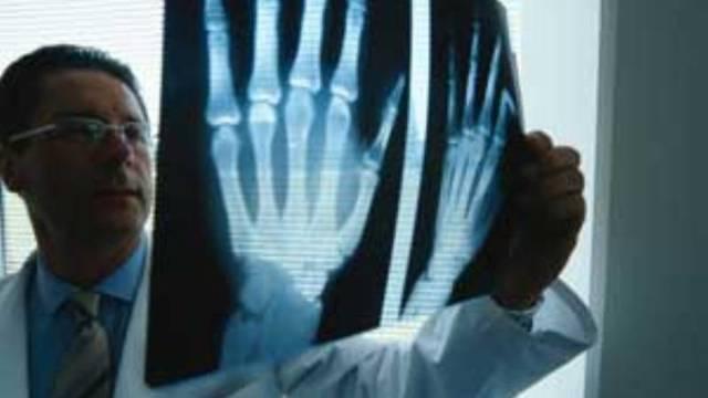 Артроз лучезапястного сустава 1 и 2 степени - симптомы и лечение