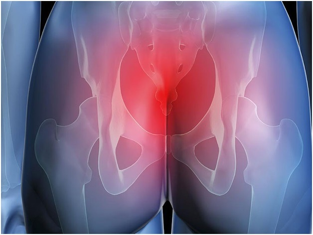 Болит копчик когда сидишь и встаешь - причины и лечение