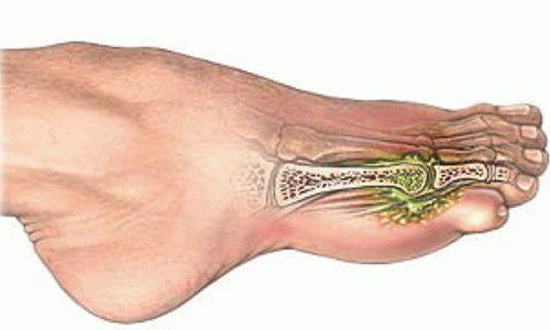 Перелом пальца на ноге - что делать и как быстро вылечить?